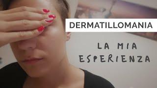 Dermatillomania: la mia esperienza